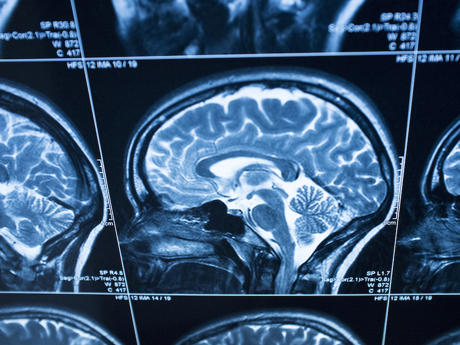 traumatic brain injury essay Recovery from traumatic brain injury recovery from traumatic brain injury outline i introduction a traumatic brain injury (tbi) is an important public health issue in.